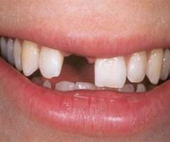 Utrata zębów fatalna w skutkach dla twojego zdrowia