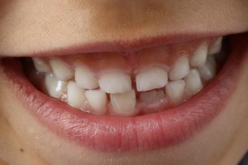 Pielęgnacja zębów – najczęściej popełniane błędy
