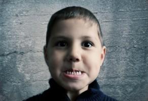 Próchnica w zębach mlecznych – co powinni wiedzieć rodzice?