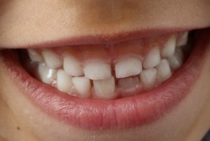 Zadbaj o zęby w sposób naturalny!