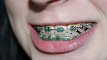 Aparat ortodontyczny – jak się z nim polubić?