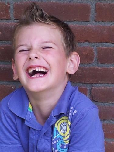 Czy utrata zęba zmienia naszą twarz?