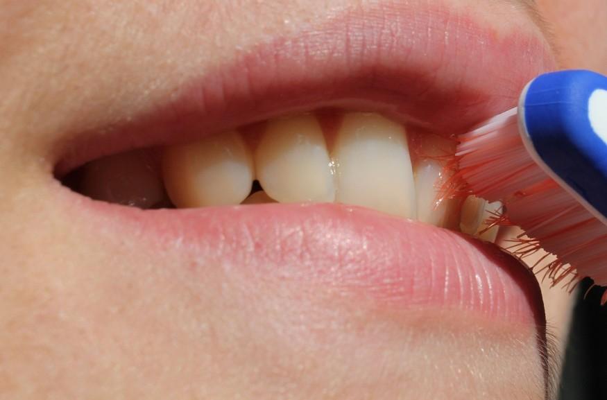 Higienizacja jamy ustnej – zabiegi niezbędne do zachowania zdrowych zębów