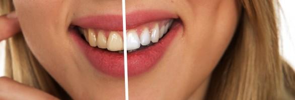 Wiosenne zabiegi pozwalające poprawić kondycję naszych zębów